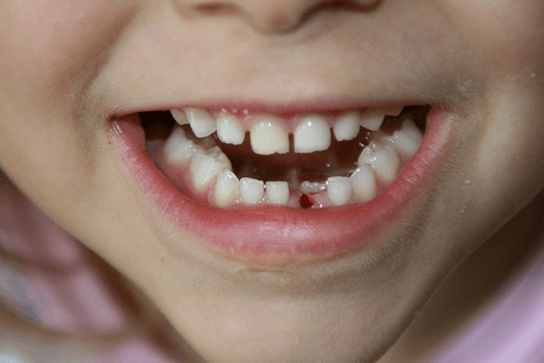 Losing Baby Teeth: Are Red Spots On The Gums Normal? - Ask the Dentist