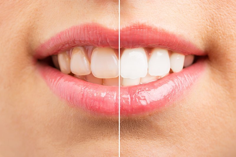 9 Ways To Whiten Your Teeth On Your Schedule Ask The Dentist