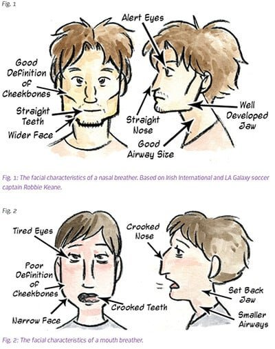 development of mouth breathers
