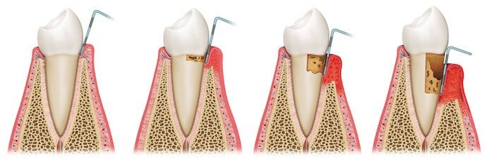 gum disease progression