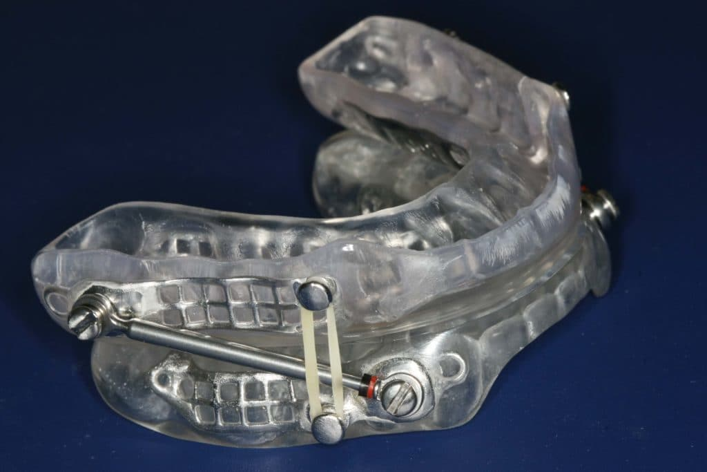 How Does a Sleep Apnea Oral Appliance Work? - Ask the Dentist