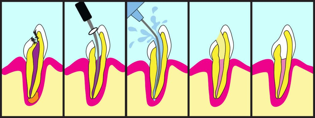 root canal procedure, root canal illustration, what to expect during a root canal