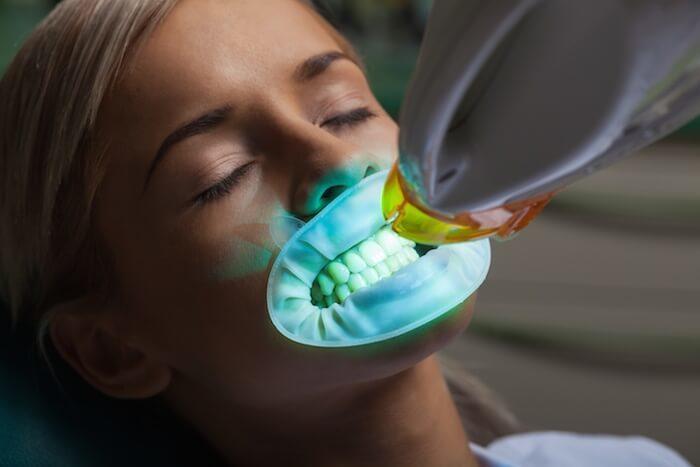 Do Tetracycline Antibiotics Stain Your Teeth Ask The Dentist
