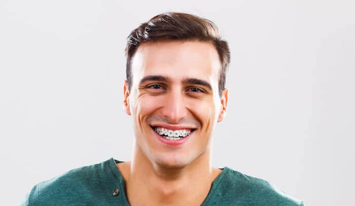 I Still Have a Gap In My Teeth After 3 Years of Braces - Ask