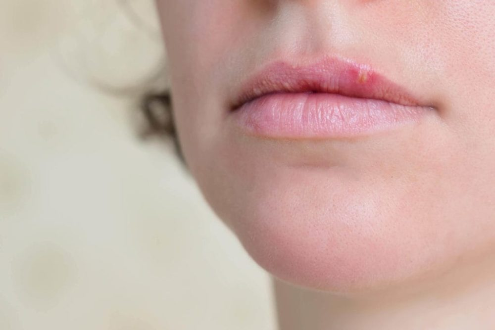 cold sores canker sores difference