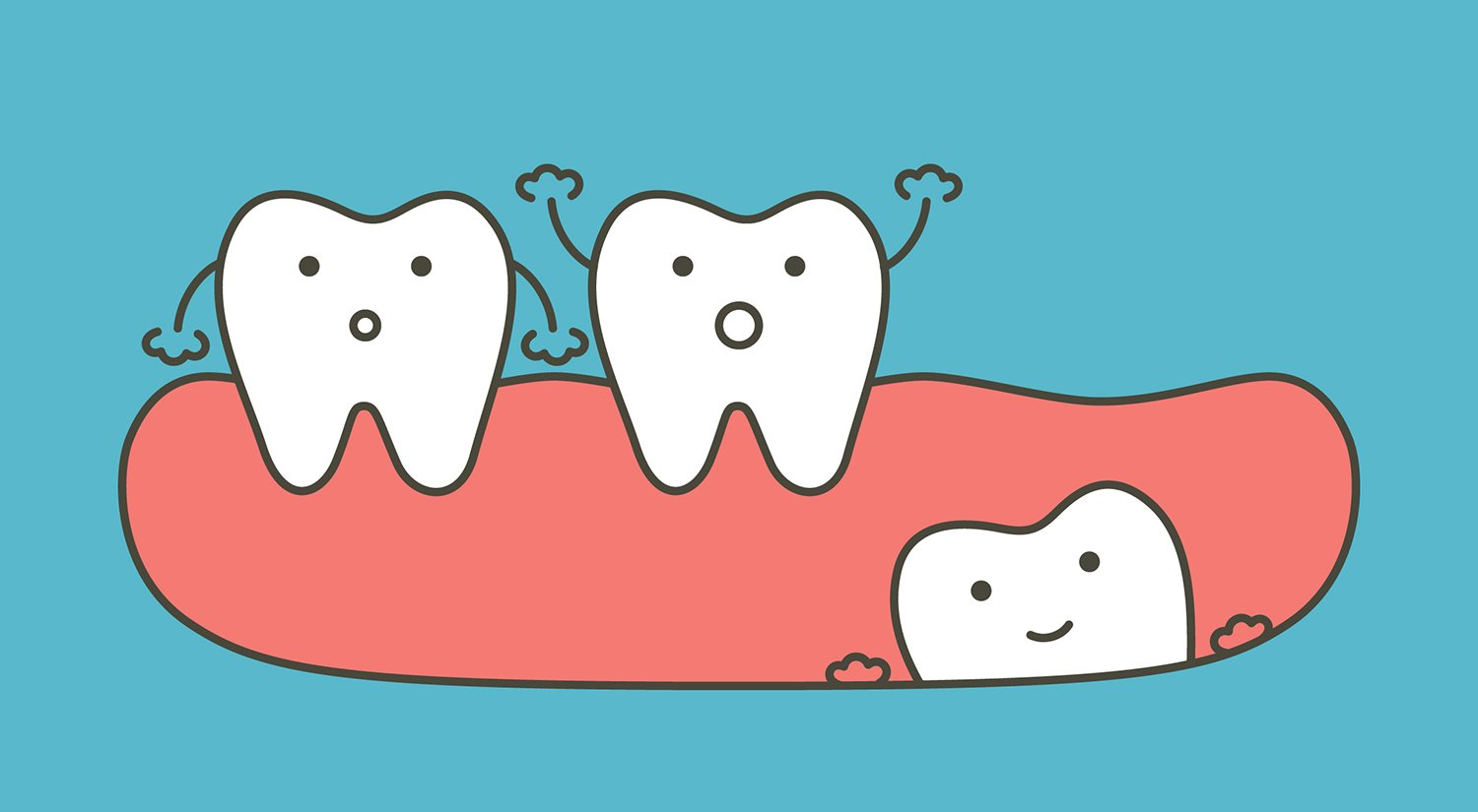Wisdom Teeth Removal: Know Before You Go - Ask the Dentist