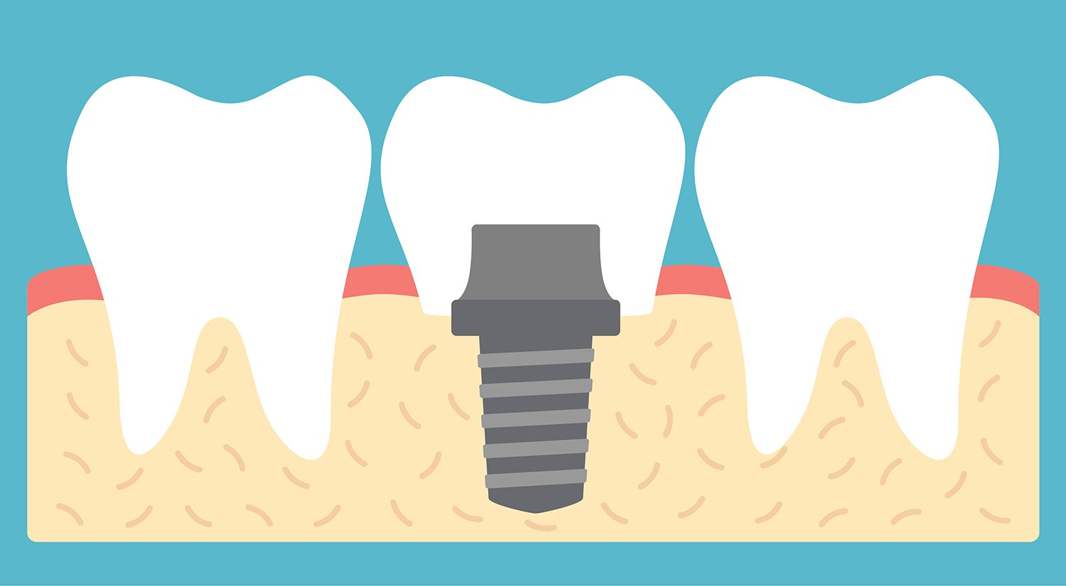 Dental Implants: What to Expect, Complications, Procedure