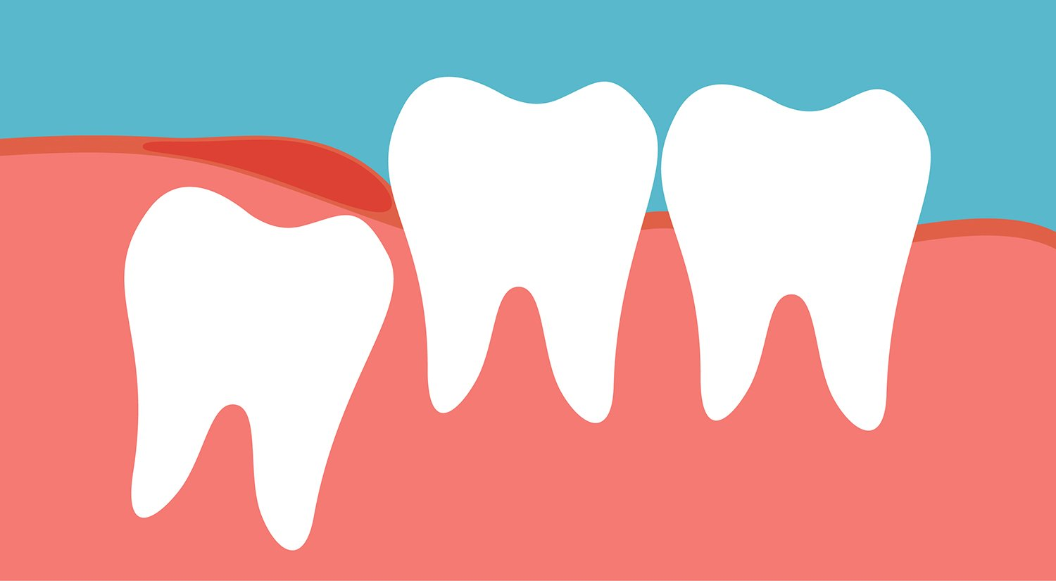 Wisdom Teeth Coming In? What You Need to Know