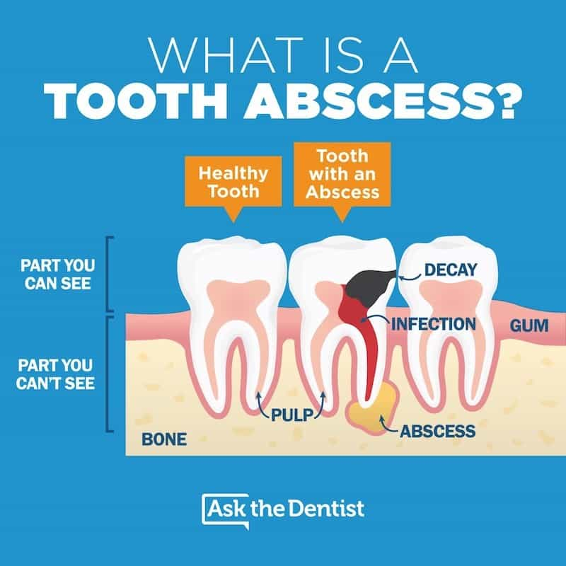 Abscess  Definition of Abscess by MerriamWebster