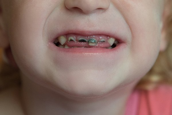 baby bottle tooth decay