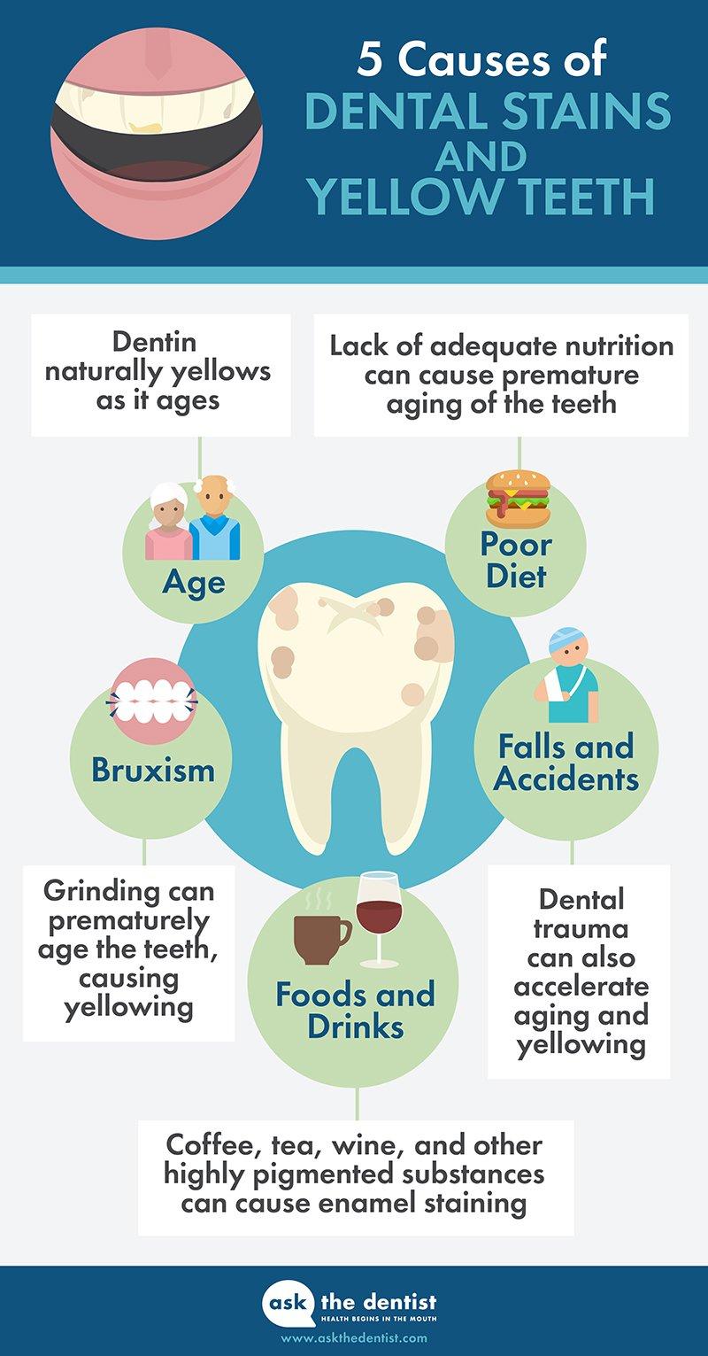 teeth whitening methods
