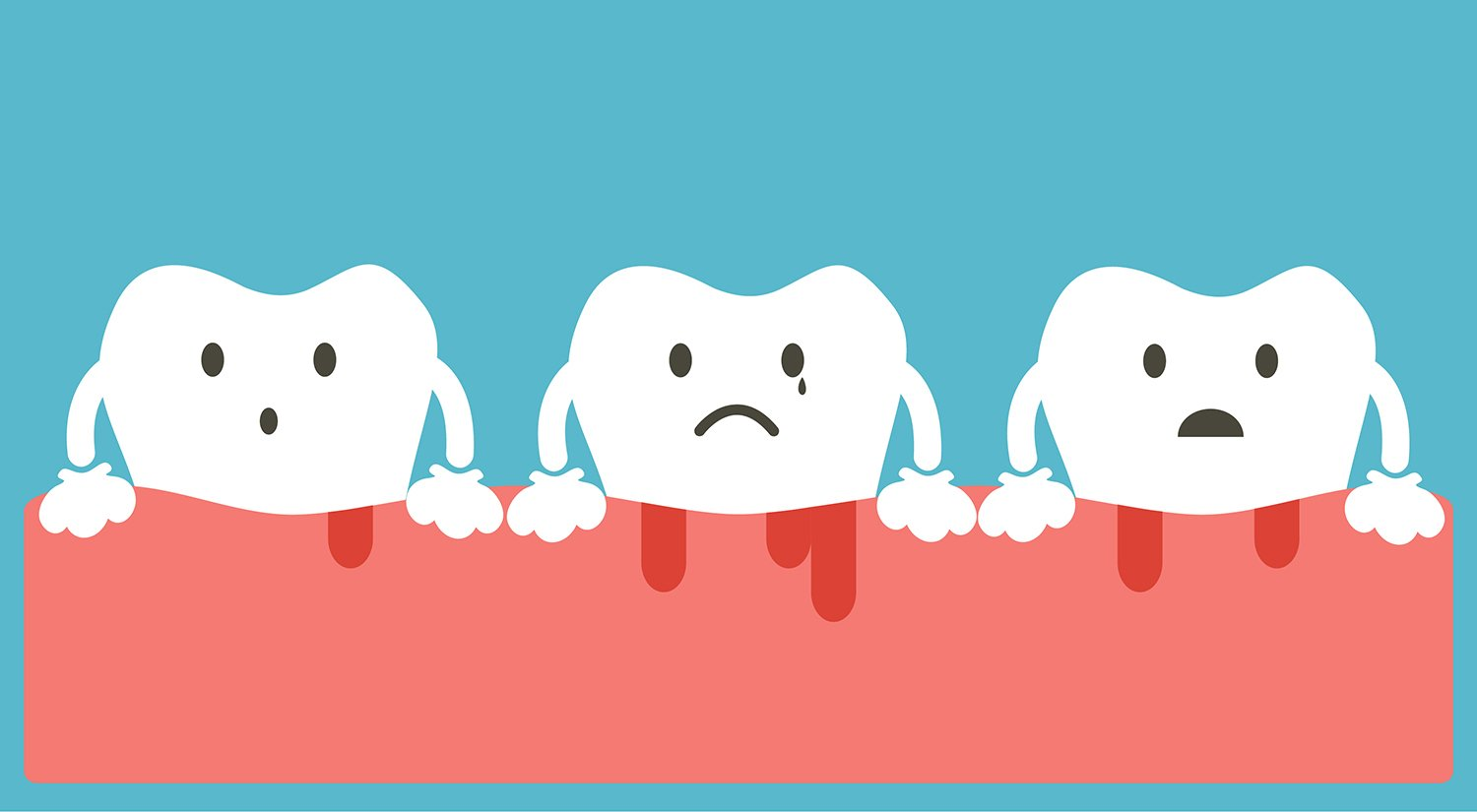 Gum Disease: Stages, Prevention, and Treatment - Ask the Dentist