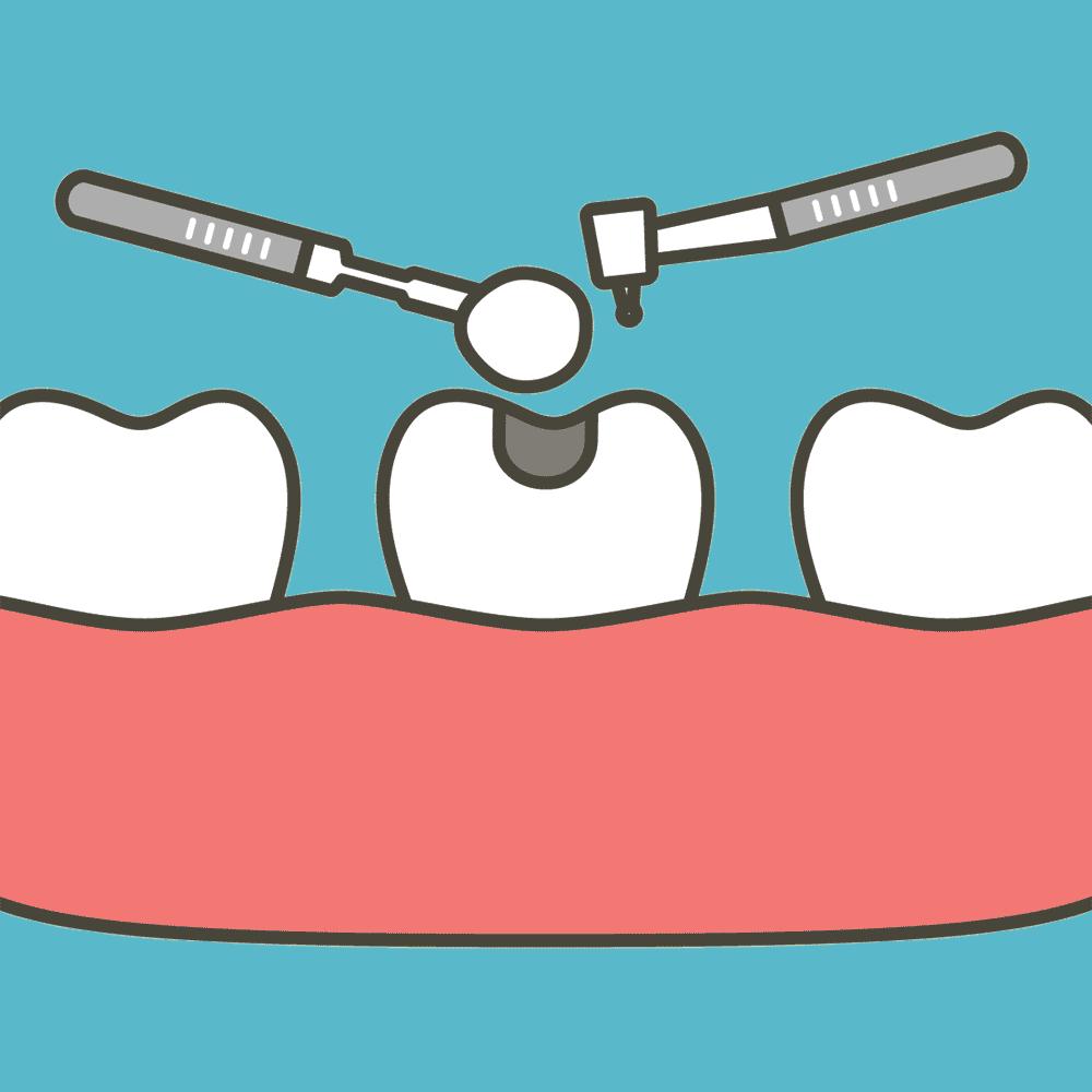 Illustration of a cavity