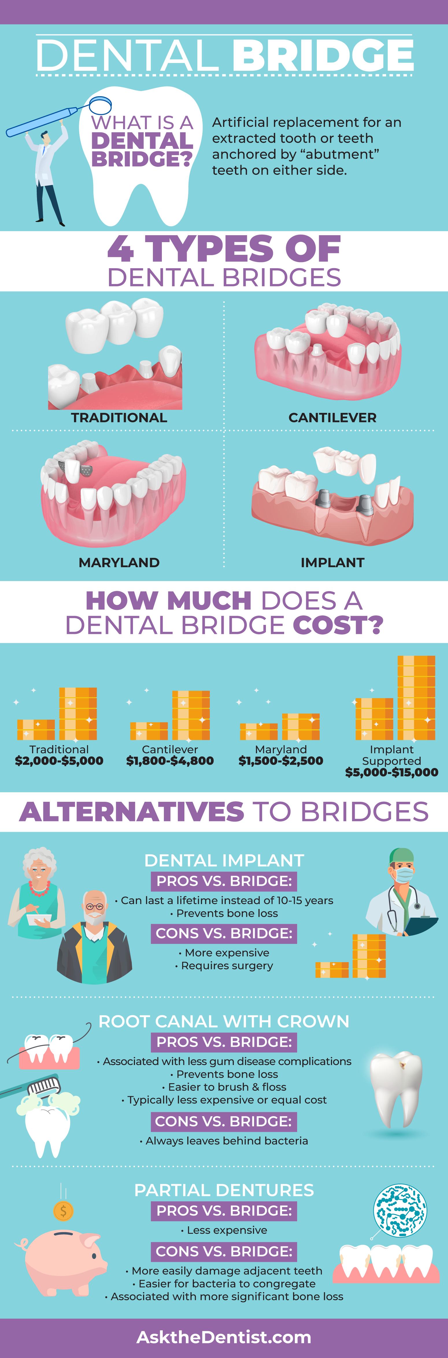 dental-bridge-cost-types-alternatives