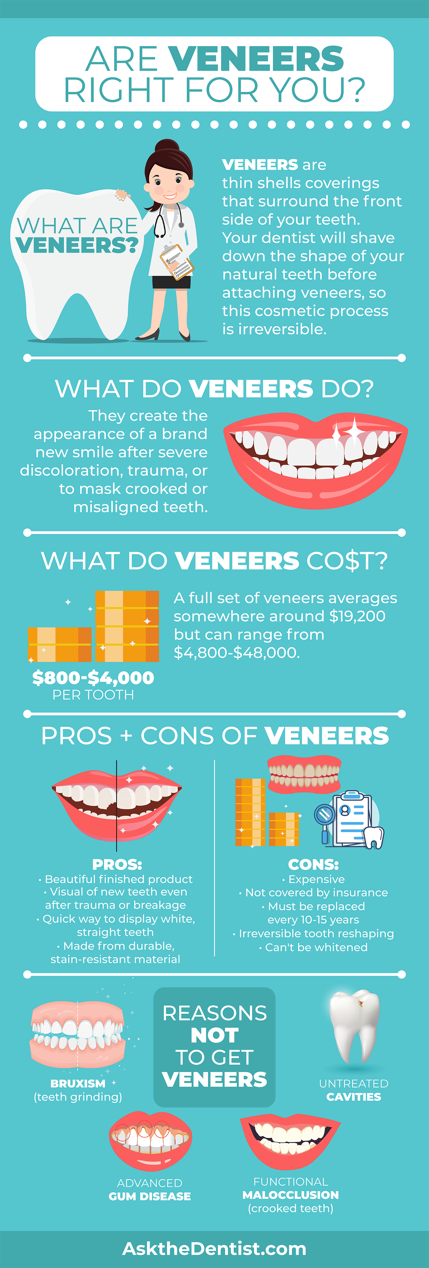 veneers-types-cost-description-pros-cons