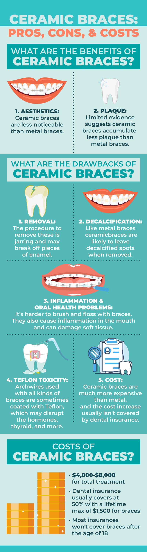 pros-cons-costs-ceramic-braces