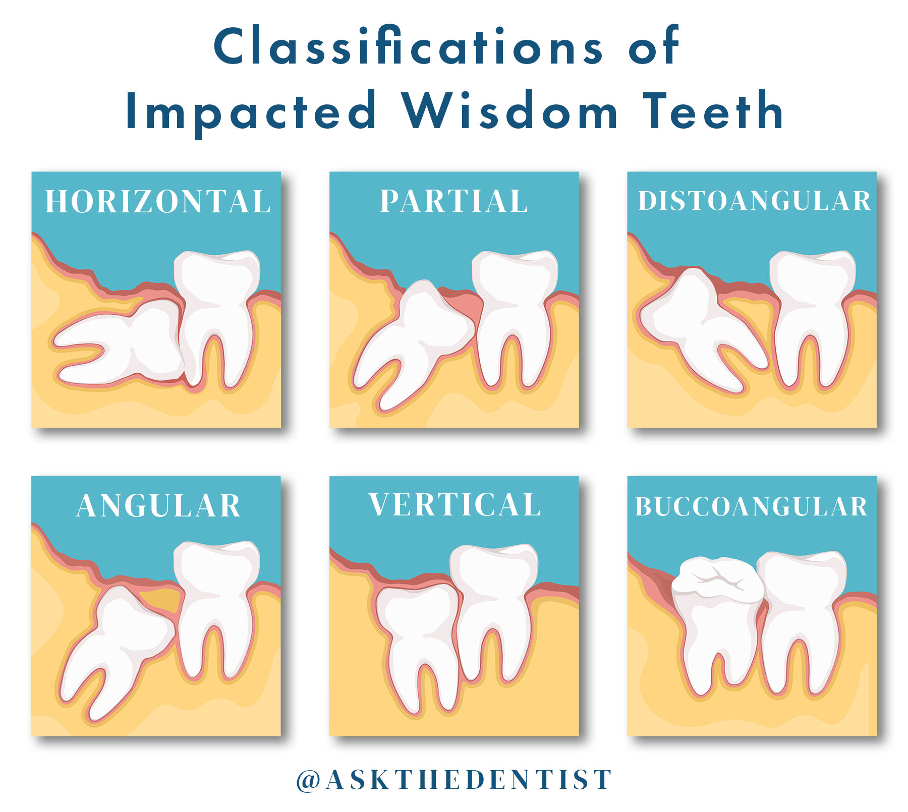 Classifications of Impacted Wisdom Teeth