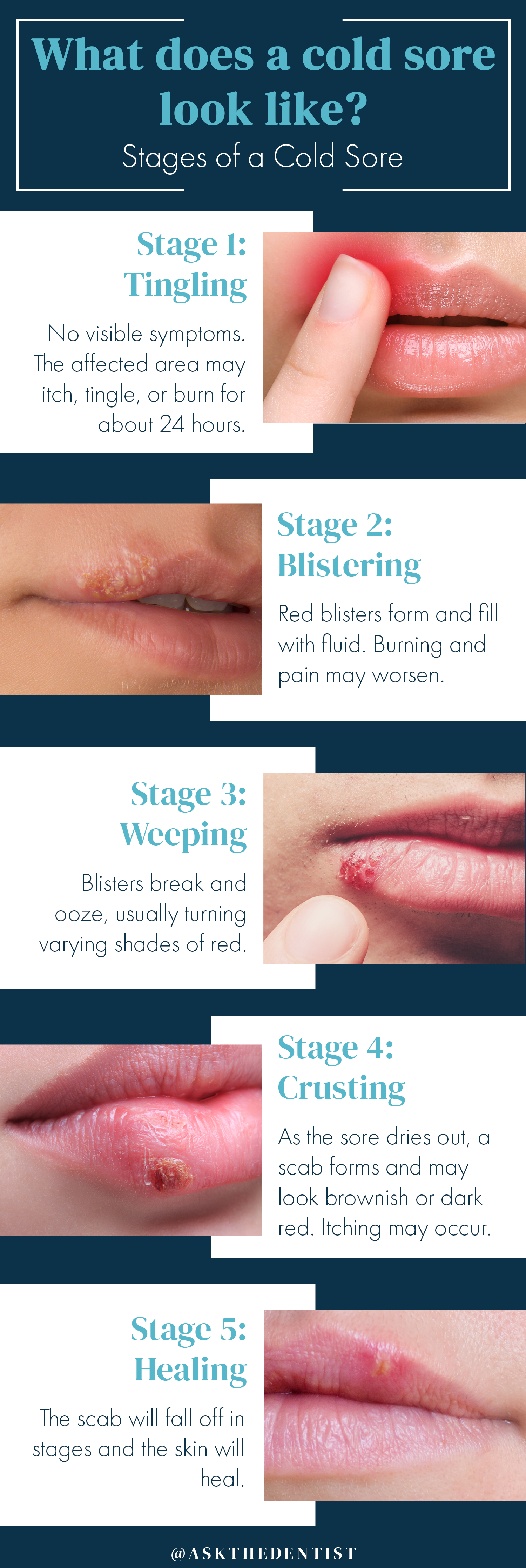 what-does-a-cold-sore-look-like, stages-of-a-cold-sore, cold-sore-stages, cold-sore-pictures