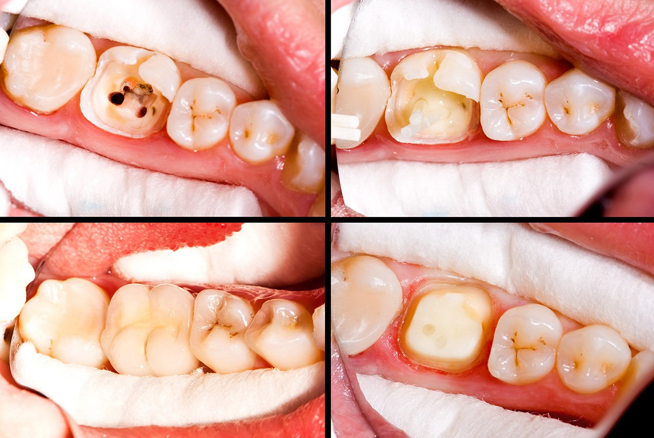 root canal before and after, root canal procedure, root canal steps